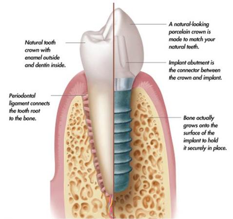 dentalimplants-img4
