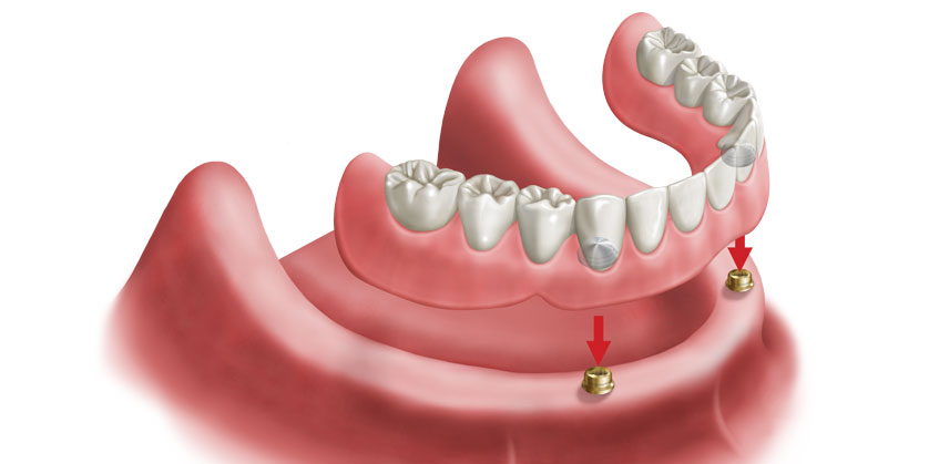 services-cs-01-inclusive-trs-locator-overdenture-03